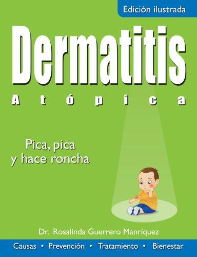 dermatitis-atopica-pica-pica-y-hace-roncha-coleccion-salud
