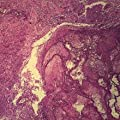 Metastatic Carcinoma to Lung Microscope Slide by Carolina Biological Supply Company