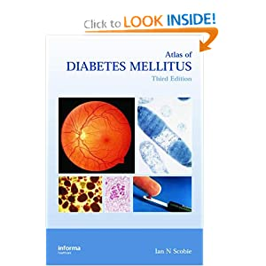 Atlas of Diabetes Mellitus Free Download 41VNY11wXvL._BO2,204,203,200_PIsitb-sticker-arrow-click,TopRight,35,-76_AA300_SH20_OU01_