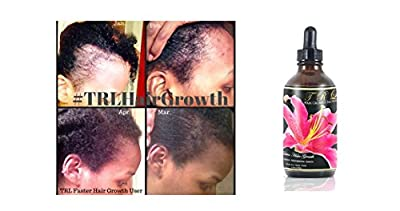 TRL Faster Hair Growth Solution - Black Castor Oil Coconut Oil olive Oil Neem Amla Fenugreek Tea Tree Rosemary