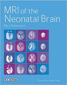 MRI of the Neonatal Brain  Mary A Rutherford