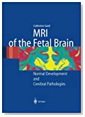 MRI of the Fetal Brain: Normal Development and Cerebral Pathologies