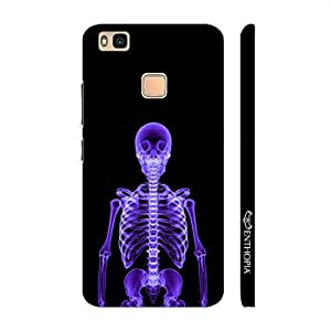 Enthopia Designer Hardshell Case X-Ray Yourself Back Cover for Huawei P9 Lite