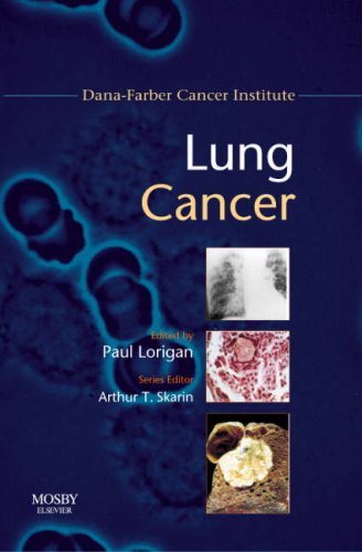 Lung Cancer: Dana-Farber Cancer Institute Handbook, 1e (Dana-Farber Cancer Institute Handbooks)