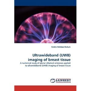 Ultrawideband (UWB) imaging of breast tissue: A numerical study of planar elliptical antennas applied to ultrawideband (UWB) imaging of breast tissue