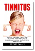 Tinnitus: Tinnitus Symptoms, Causes And Treatment - 12 Amazing Home Remedies And Natural Treatments For Tinnitus Cure! (Tinnitus 101, Tinnitus Cure, Tinnitus Control)