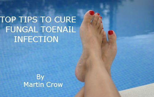 TOP TIPS TO CURE FUNGAL TOENAIL INFECTION How To The Treatment And Cure Of