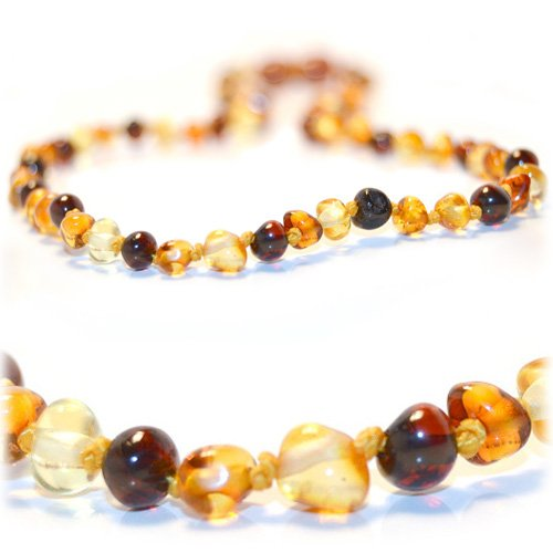 The Art of Cure Certified Baltic Amber Necklace 17 Inch (multicolored) - Anti-inflammatory