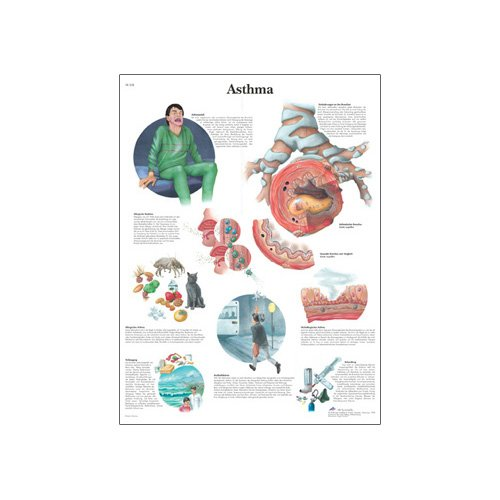 what is asthma paper So you have asthma have a family history of asthma or allergies and your mother was exposed to certain irritants, such as tobacco smoke, when she was pregnant with you, you may be more.