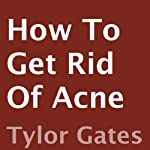 How to Get Rid of Acne | Tylor Gates