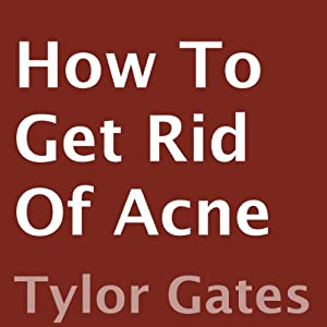 How to Get Rid of Acne | [Tylor Gates]