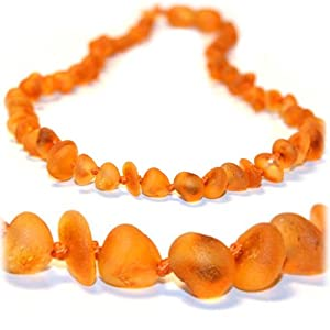 The Art of CureTM *SAFETY KNOTTED* Raw chip - (Unisex) - Certified Baltic Amber Baby Teething Necklace Highest Quality Guaranteed- Anti Inflammatory, Drooling & Teething Pain. Easy to Fastens with a Twist-in Screw Clasp Mothers Approved Remedies!