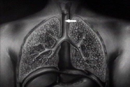Historic Tuberculosis Films Dvd: History Of Pulmonary & Mycobacterium Tb & Lung Disease Films