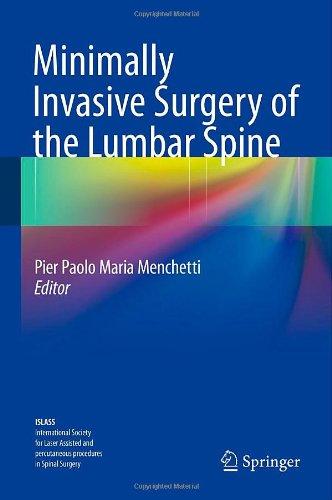Minimally Invasive Surgery Of The Lumbar Spine