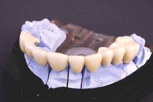 How Much Does A Dental Bridge Cost