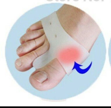 Sparsh 4.0 Sparsh 4.0 One Pair of Silicone Big Toe Separator for Hallux Bunion Pain for Night Wear Pain Comfort