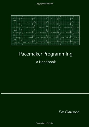 Pacemaker Programming by Eva Clausson (2013-12-02) (Pacemaker Programming Books compare prices)