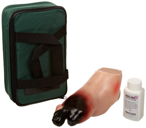 HEALTH EDCO W43107A Biolike Severe Diabetic Foot Model