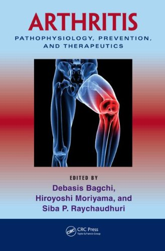 Arthritis: Pathophysiology, Prevention, And Therapeutics