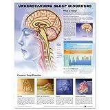 Understanding Sleep Disorders Chart
