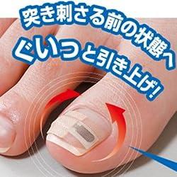 巻き爪リフトシール 1ヶ月ケア ※リフトメタルがグイッと爪をサポート!