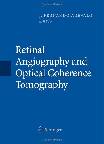 A review of optical coherence tomography angiography OCTA
