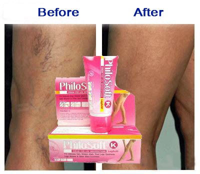 Philosoft Remove Thread Varicose Spider Veins Stretch Marks Tired Legs Treatment ***Ship From Usa