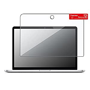 eForCity Clear Screen Protector for 13.3-Inch Apple MacBook Pro (PAPPMC13SP01)