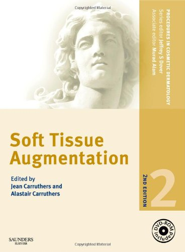 Procedures in Cosmetic Dermatology Series: Soft Tissue Augmentation with DVD
