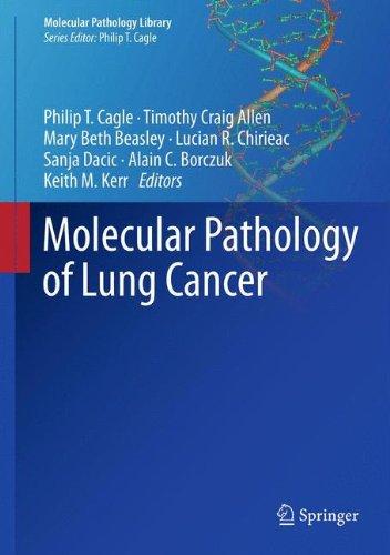 Molecular Pathology Of Lung Cancer (Molecular Pathology Library)