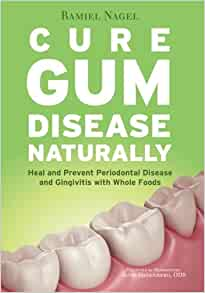 Cure Gum Disease Naturally Heal Gingivitis And