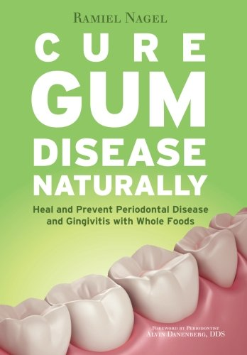 How To Cure Periodontitis Naturally