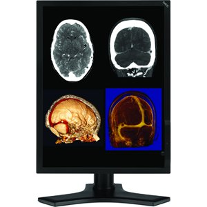 Md212mc - Lcd Display - Tft Active Matrix - 21 Inch - 1600 X 1200 - 20 Ms - 0.27