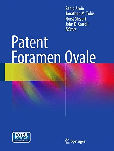 Patent Foramen Ovale (2014-12-04)