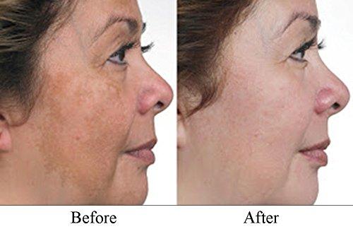 2 Oz 60 Ml Hydroquinone Pro Treatment Serum Dark Skin