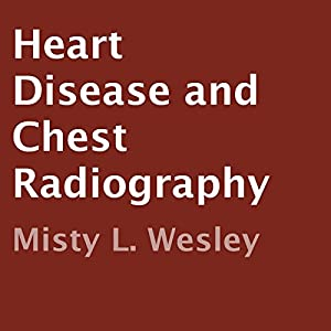Heart Disease and Chest Radiography Audiobook