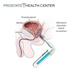 fest massage prostata massage