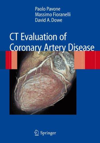 Ct Evaluation Of Coronary Artery Disease