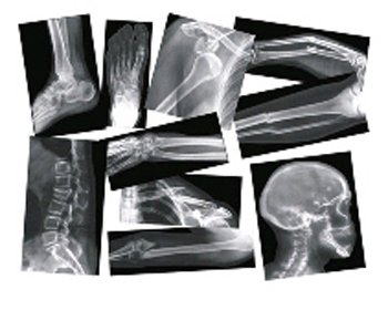 Broken bone, compound fracture x-rays