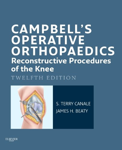 S. Terry Canale - Campbell's Operative Orthopaedics: Reconstructive Procedures of the Knee