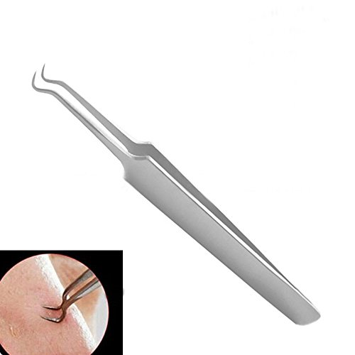 okdeals-bend-curved-blackhead-acne-blemish-clip-clips-pimple-comedone-remover-nipper-stainless-beaut