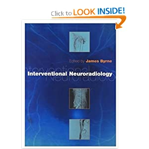 Interventional Neuroradiology: Theory and Practice