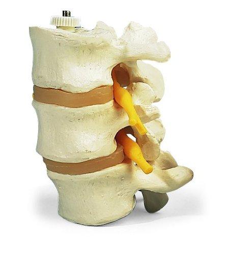 3b-scientific-a76-8-tres-discos-vertebrales-montados-flexibles