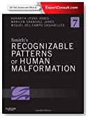 Smith's Recognizable Patterns of Human Malformation: Expert Consult - Online and Print, 7e