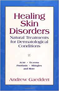Healing Skin Disorders: Natural Treatments for Dermatological