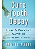 Cure Tooth Decay: Heal And Prevent Cavities With Nutrition - Limit And Avoid Dental Surgery and Fluoride [Second Edition] 5 Stars