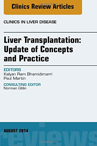 Liver Transplantation: Update Of Concepts And Practice, An Issue Of Clinics In Liver Disease, 1E (The Clinics: Internal Medicine)