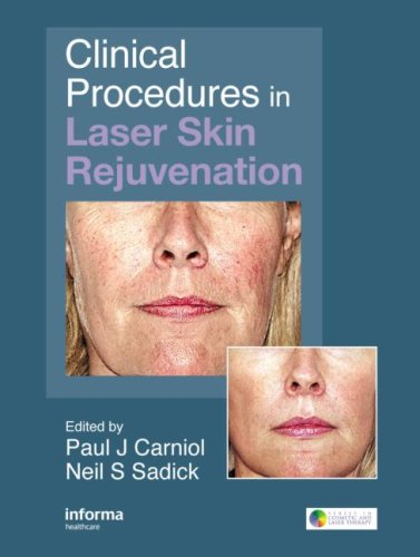 Clinical Procedures in Laser Skin Rejuvenation (Series in Cosmetic and Laser Therapy)