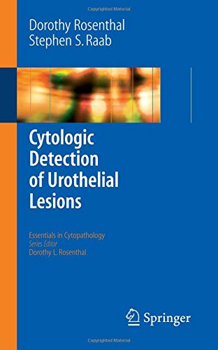 Cytologic Detection of Urothelial Lesions (Essentials in Cytopathology)