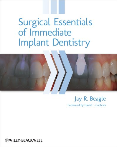 Surgical Essentials of Immediate Implant Dentistry